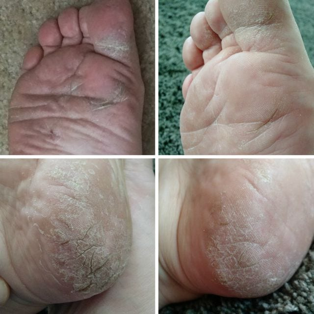 Baby Foot before & after- does it really work?